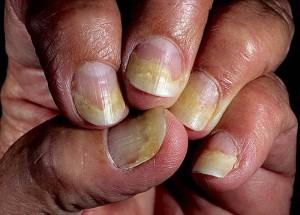 Уход за ногтями после гель-лака