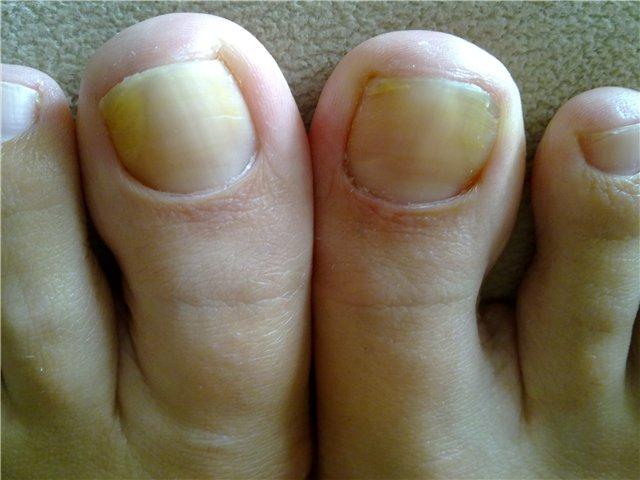 Заболевания ногтей и их лечение и профилактика