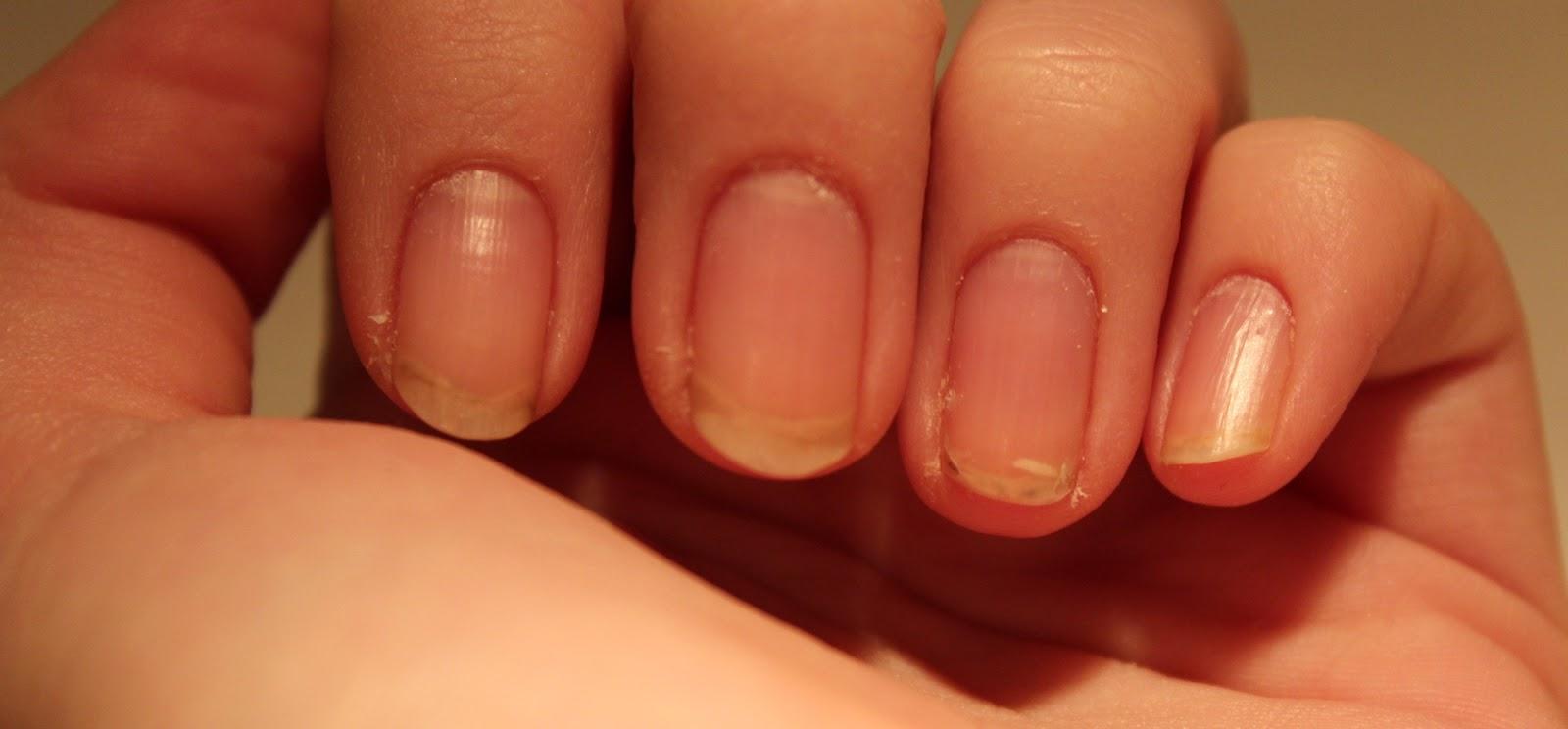 Что принять когда слоятся ногти