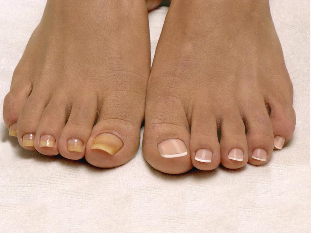Грибок большого пальца на ноге лак