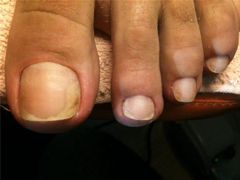 Как лечить грибок на пальцах руки