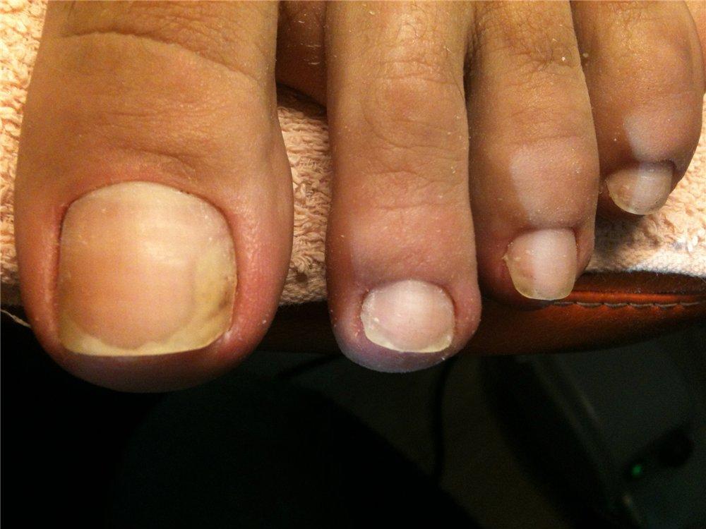 Лечение грибка на ногте большого пальца ноги лечение