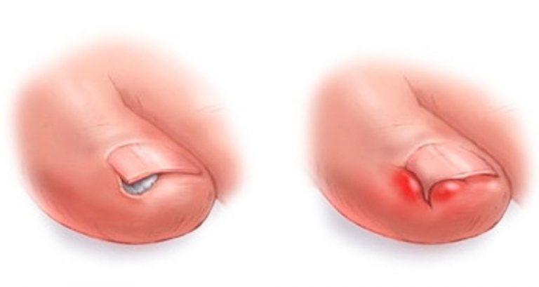 Болит вросший ноготь на ноге что делать