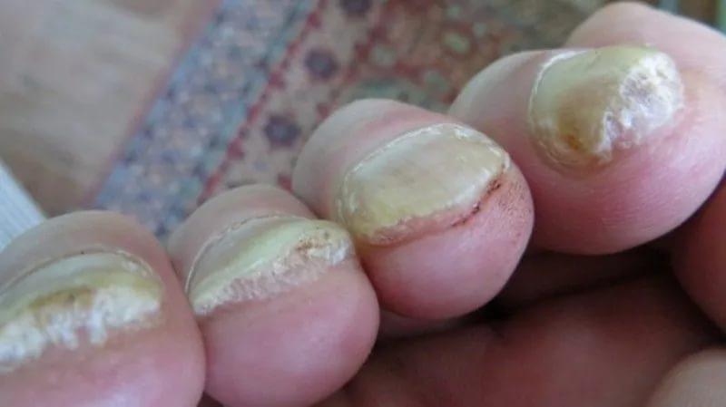 Как Вылечить Псориаз И Грибок Ногтей В Домашних Условиях