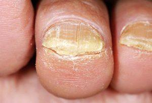 Онихомикоз - симптомы, лечение, препараты, народные средства, причины и профилактика - Лечим онихомикоз ногтей эффективно