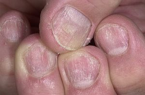 Как отличить грибок ногтей от псориаза ногтей
