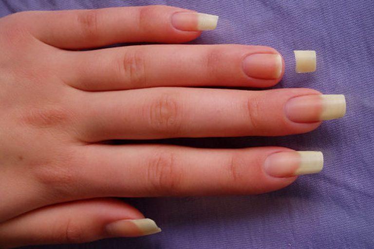Приснилось что я сломала ногти на руках