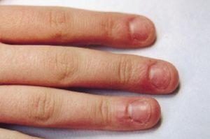 Как отучиться грызть ногти на руках взрослому человеку?
