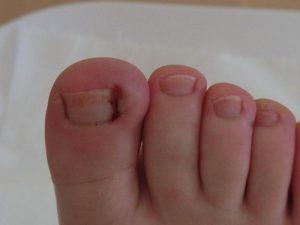 Нарывает палец на ноге около ногтя лечение