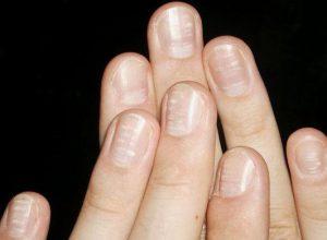 Ногти на ногах белые полосы