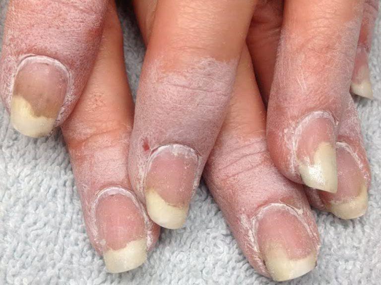 Слоение ногтей при грибке