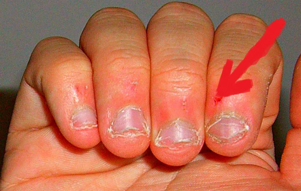 Лак для ногтей для детей которые грызут ногти