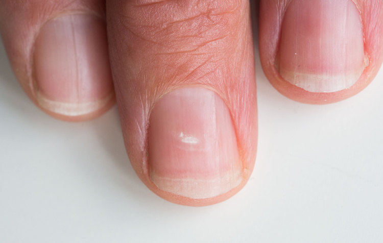 продольные бороздки на ногтях